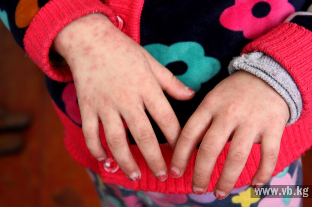 Минск поликлиника 17 детская поликлиника регистратура