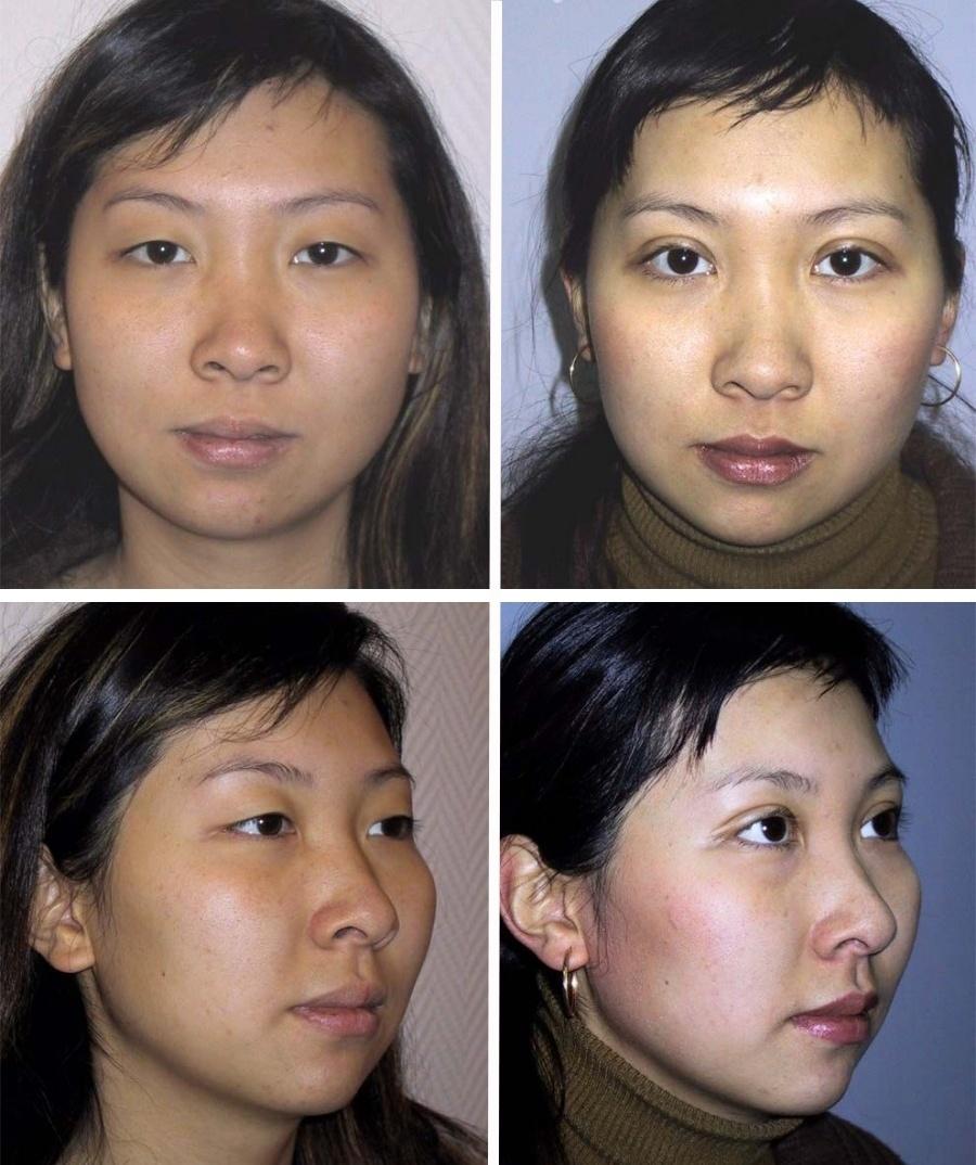 Европейское веко для кыргызских девушек